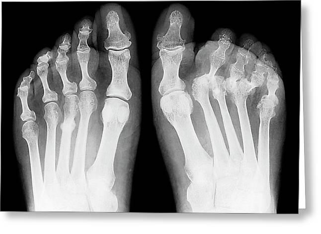 Rheumatoid Arthritis Of The Feet Greeting Card