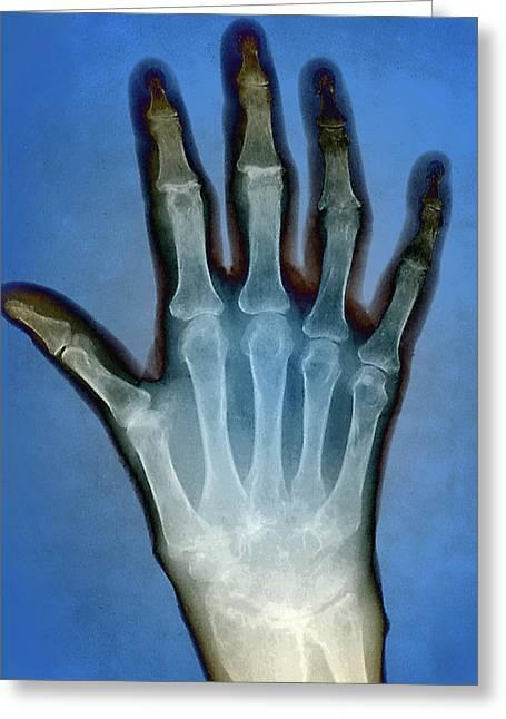 Rheumatoid Arthritis Of The Hand Greeting Card