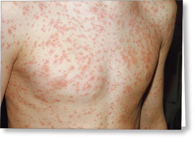 Rubella Rash Greeting Card by Pr. Ph. Franceschini/cnri/science Photo Library