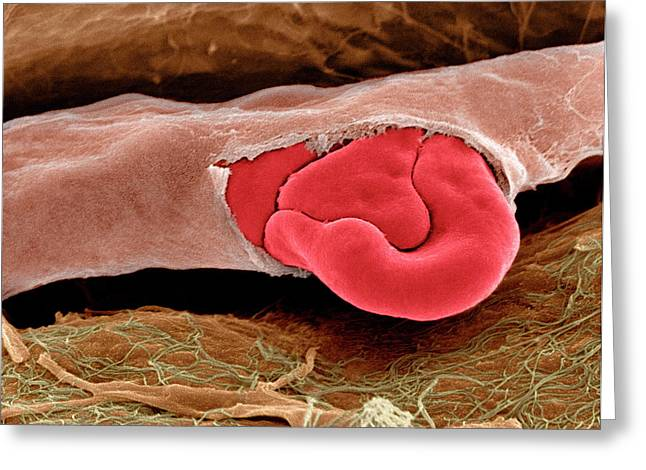 Ruptured Capillary Greeting Card by Steve Gschmeissner