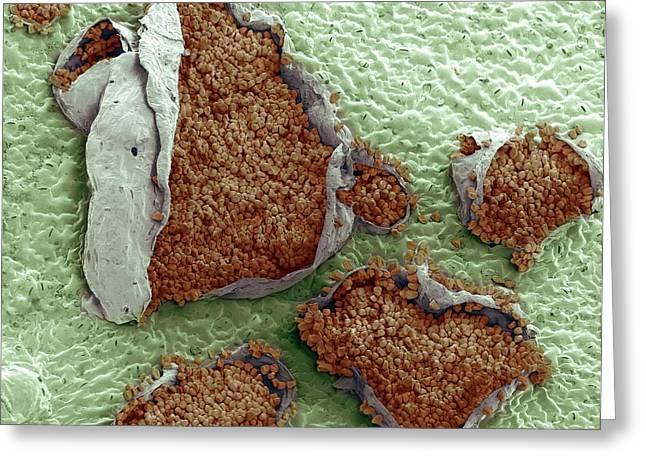 Rust Fungus On A Bellflower Leaf Greeting Card