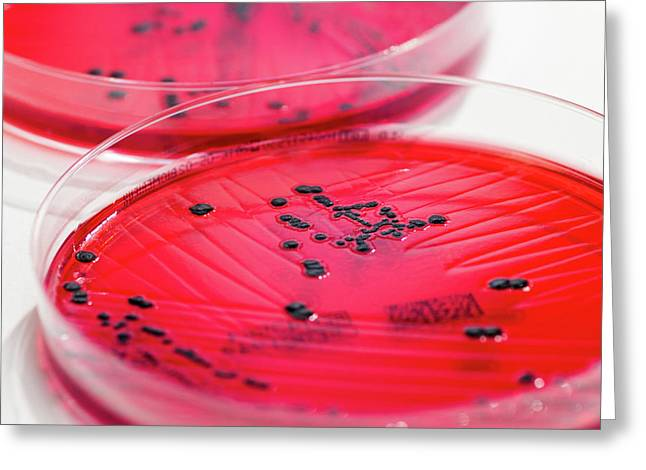 Salmonella Enterica Culture On Xld-agar Greeting Card by Daniela Beckmann
