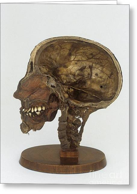 Sectional Dissected Head, 19th Century Greeting Card