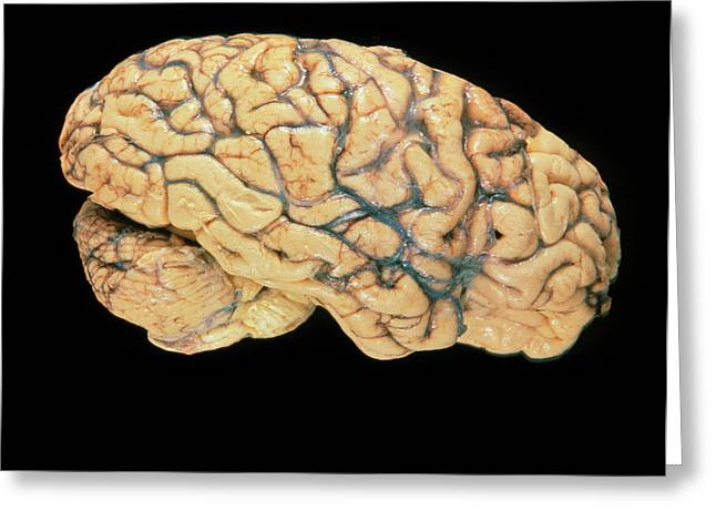 Side View Of A Healthy Human Brain Greeting Card