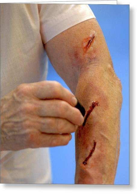 Simulated Arm Lacerations Greeting Card by Public Health England