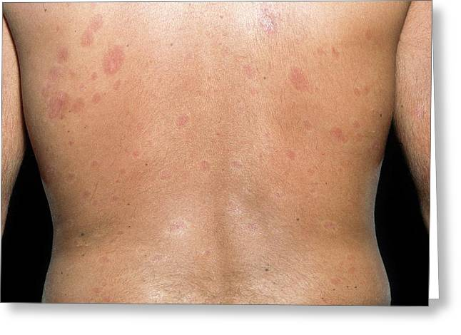 Skin Plaques In Systemic Sclerosis Greeting Card by Science Photo Library