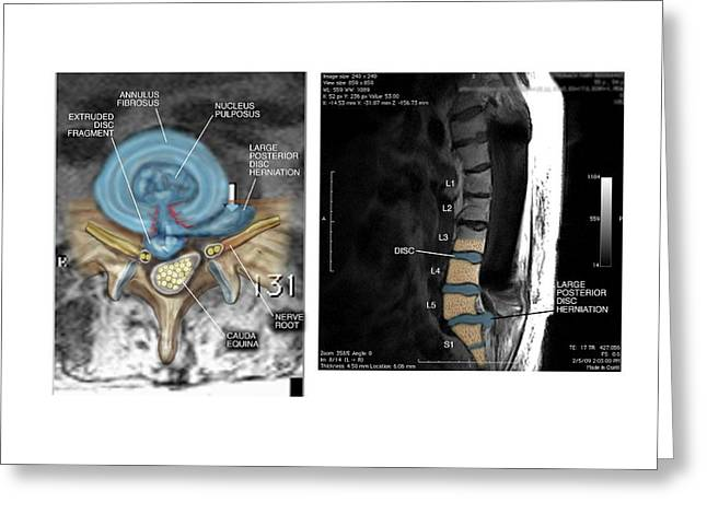 Slipped Disc In The Lumbar Spine Greeting Card