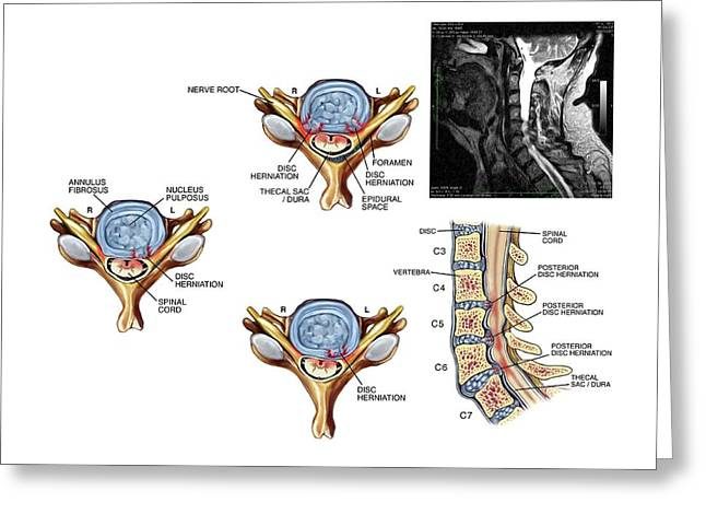 Slipped Discs In The Cervical Spine Greeting Card