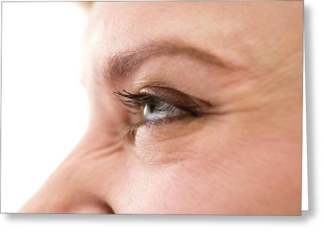 Smiling Woman's Eye Greeting Card