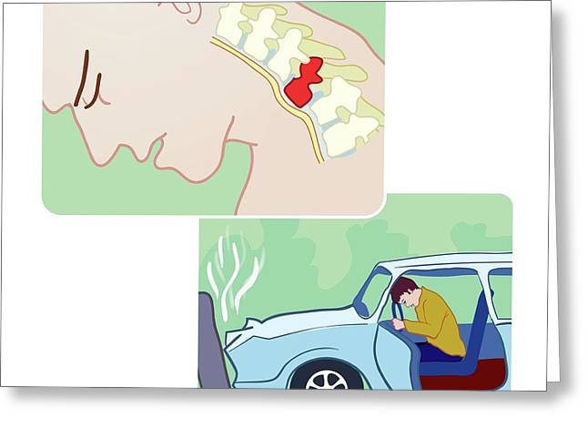Spinal Fracture In Car Accident Greeting Card by Jeanette Engqvist