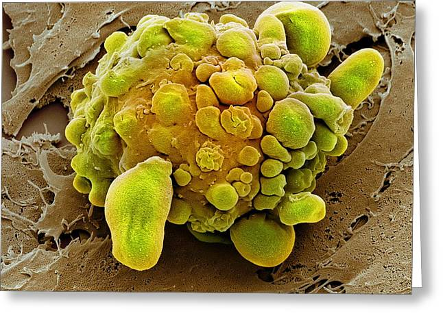 Stem Cell Dying, Sem Greeting Card by Science Photo Library