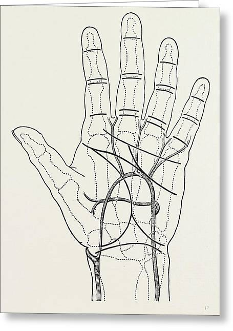 Surface Markings On The Palm Of Ffile Hand Greeting Card by Litz Collection