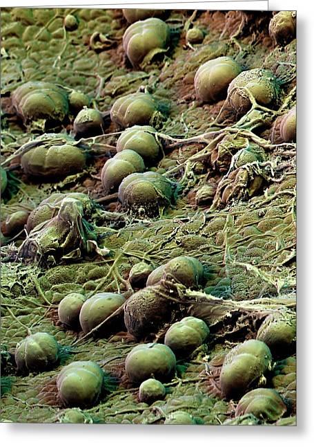 Sweet Potato Leaf Glands Greeting Card by Stefan Diller