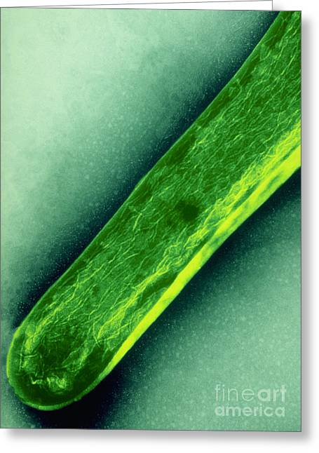 Tem Of Mycobacterium Tuberculosis Greeting Card