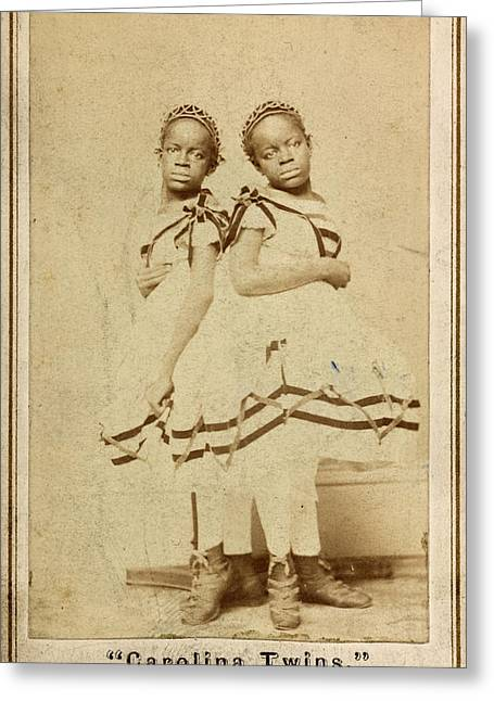 The Carolina Twins, C1866 Greeting Card by Granger