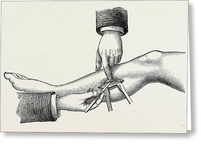 The Mode Of Dividing The Solidus Muscle In Ligature Greeting Card by Litz Collection