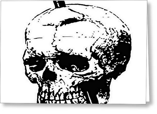 The Skull Of Phineas Gage Vintage Illustration Vector Greeting Card by Tracey Harrington-Simpson