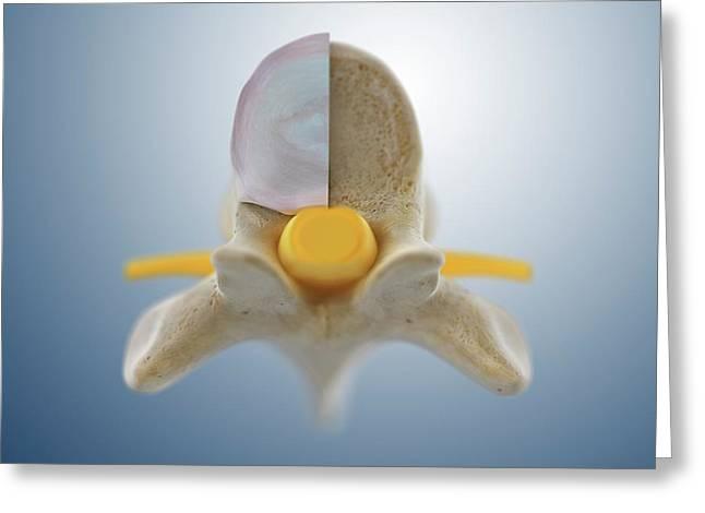 Thoracic Vertebra (t6) Greeting Card by Springer Medizin