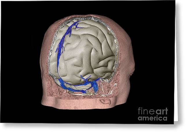 Thrombophlebitis In The Brain, 3d Ct Scan Greeting Card