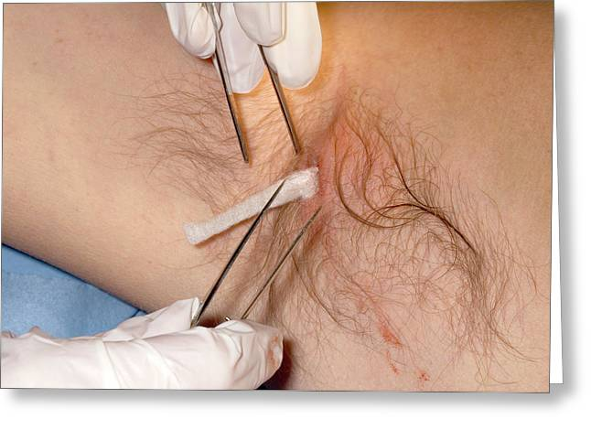 Treatment Of An Underarm Abscess Greeting Card by Dr P. Marazzi/science Photo Library