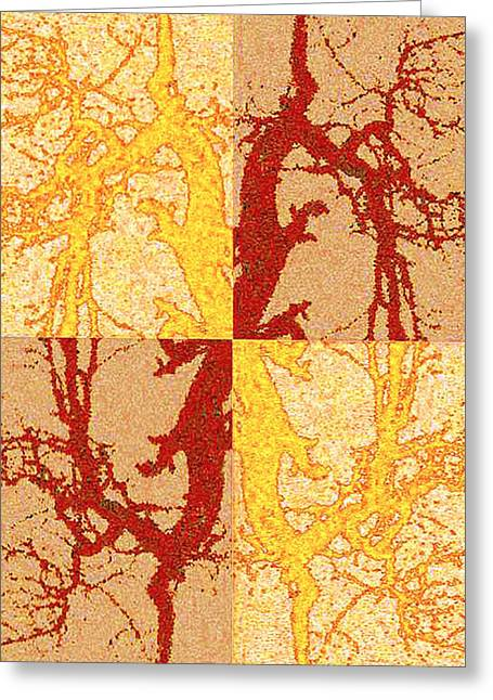Tree Dance Greeting Card by Christopher Byrd