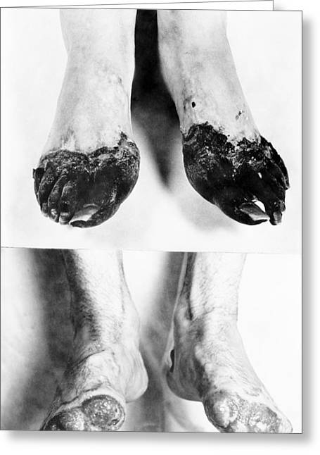 Trench Foot Greeting Card