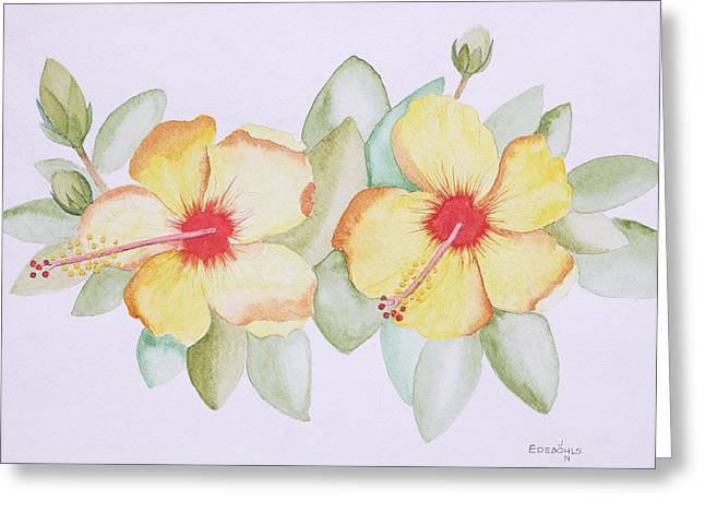 Twins Greeting Card by John Edebohls