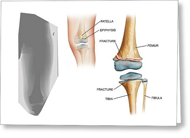 Type II Salter Fracture In The Knee Greeting Card