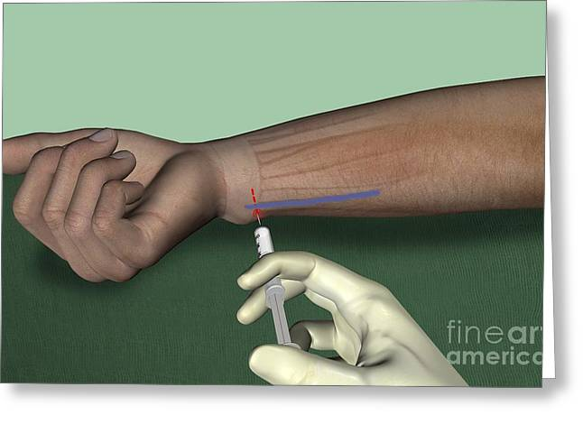 Ulnar Nerve Wrist Block, Artwork Greeting Card
