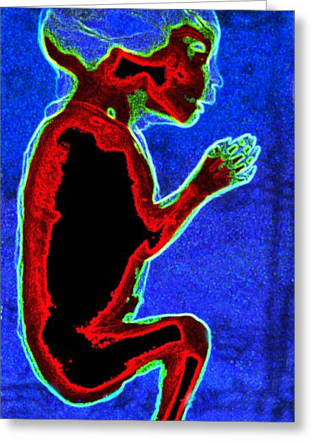 Unborn Fetus Greeting Card by Howard Koby