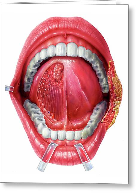 Underside Of The Tongue Greeting Card by Bo Veisland/science Photo Library