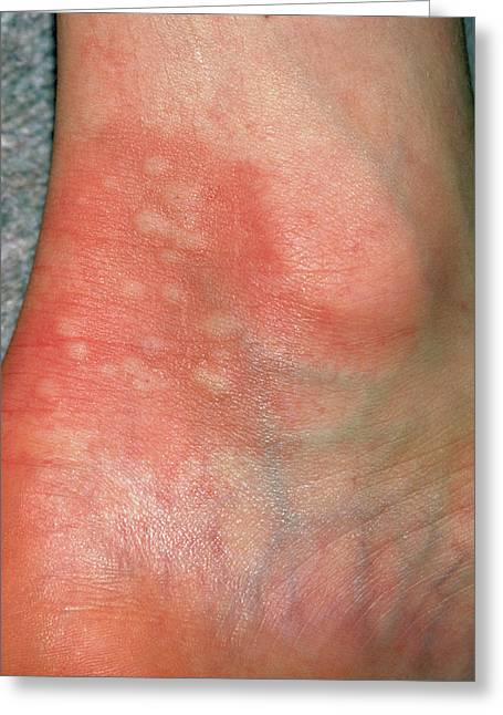 Urticaria Rash (hives) On Ankle Due To Nettles by Dr P  Marazzi/science  Photo Library