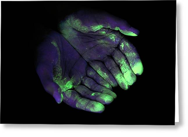 Uv Light Showing Bacteria On Hands Greeting Card by Science Photo Library