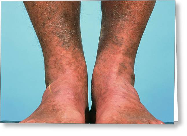 Varicose Vein Bruising Greeting Card by Alex Bartel/science Photo Library