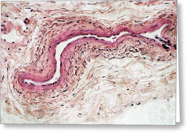 Vein Cross-section. Lm Greeting Card by Science Stock Photography