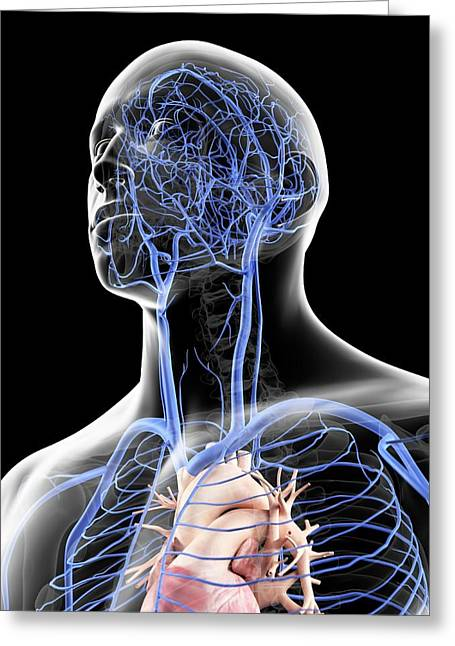 Veins In The Head Greeting Card by Sciepro