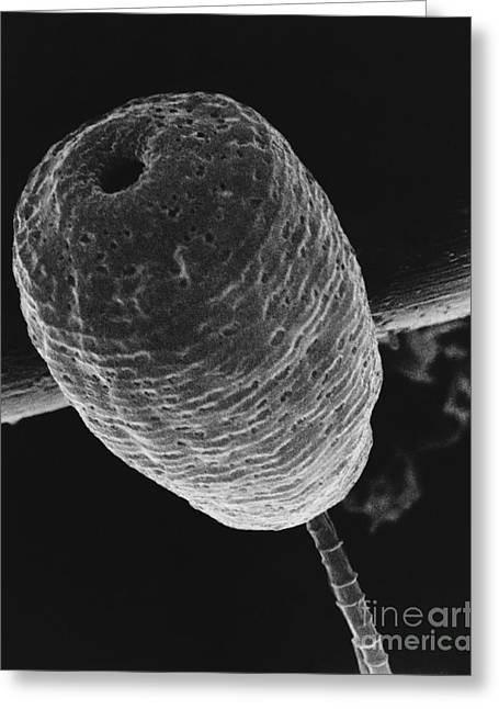 Vorticella Sem Greeting Card by David M. Phillips