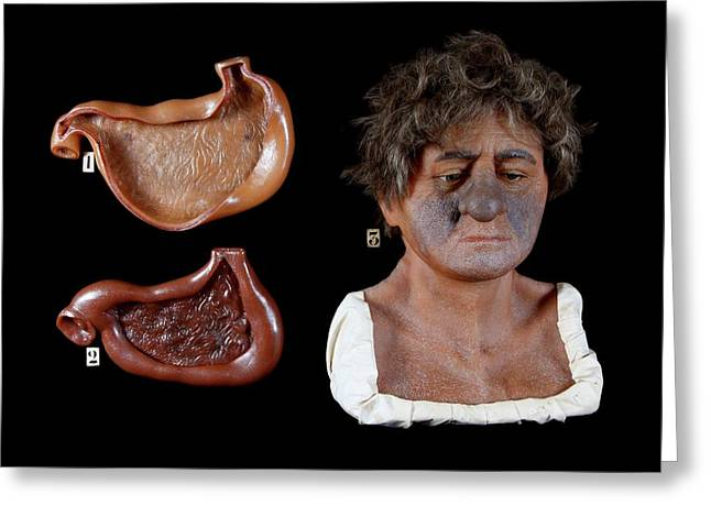 Wax Model Of The Effects Of Alcohol Greeting Card by Gregory Davies