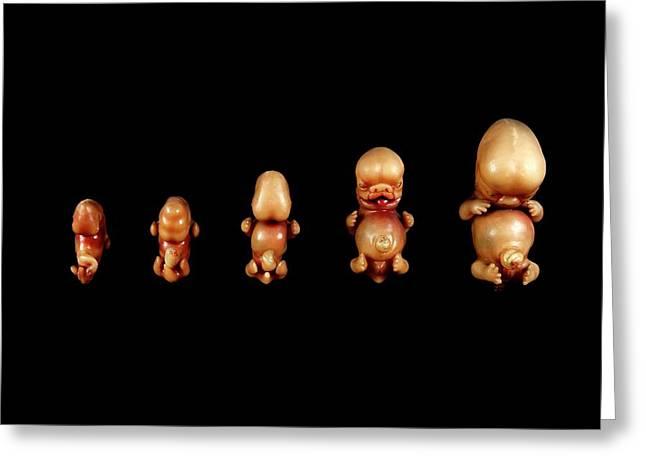Wax Models Of Human Foetal Development Greeting Card by Gregory Davies