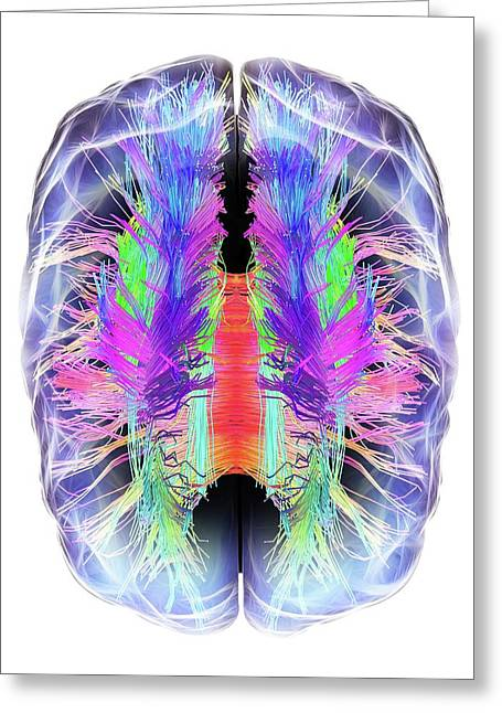 White Matter Fibres And Brain Greeting Card