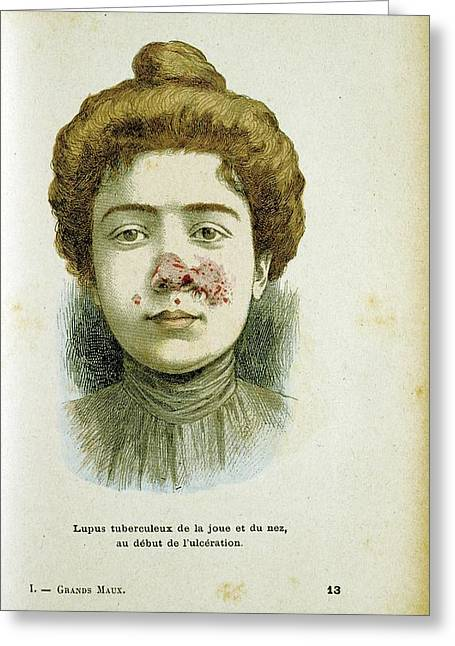 Woman With Lupus Vulgaris Greeting Card by Universal History Archive/uig