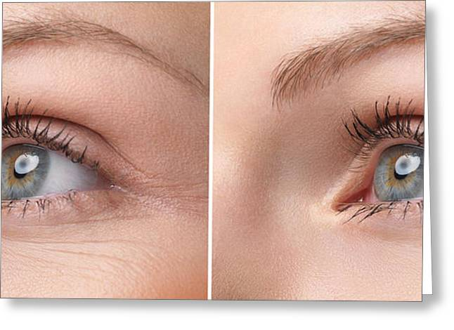 Womans Eye With And Without Wrinkles Greeting Card by Oleksiy Maksymenko