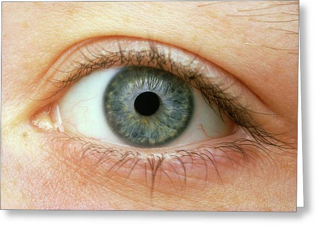 Woman's Right Eye Greeting Card by Martin Dohrn/science Photo Library