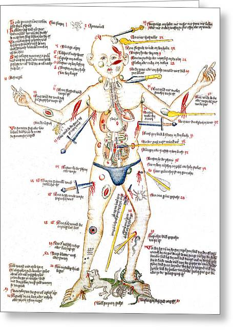 Wound Man, 1420s Greeting Card