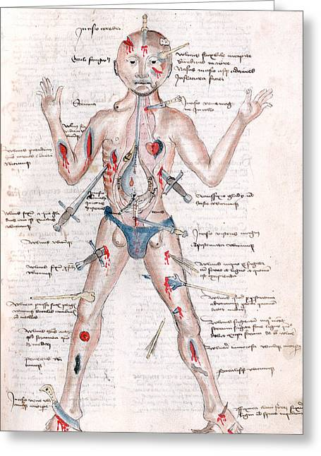 Wound Man, 1485 Greeting Card by Science Source