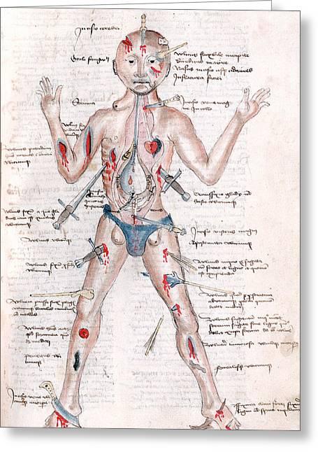 Wound Man, 1485 Greeting Card