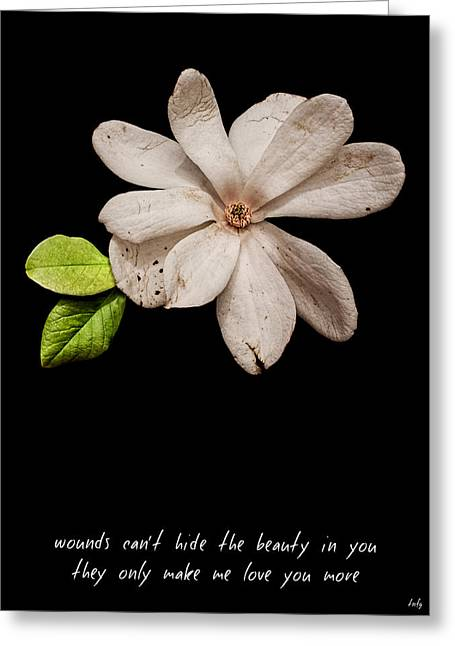 Wounds Cannot Hide The Beauty In You Greeting Card