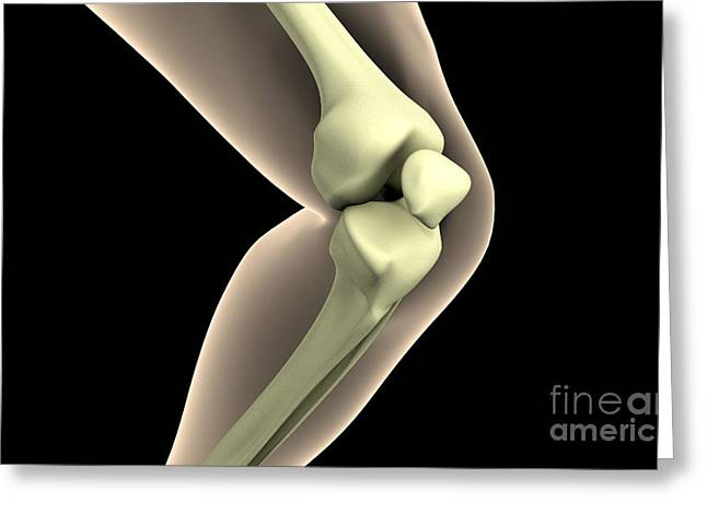 X-ray Image Of Knee Greeting Card by Stocktrek Images