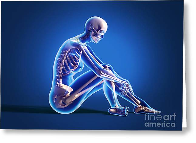 X-ray View Of A Woman Sitting On Floor Greeting Card by Leonello Calvetti