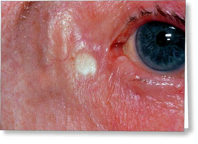 Xanthelasma Found Close To Elderly Woman's Eyelid Greeting Card